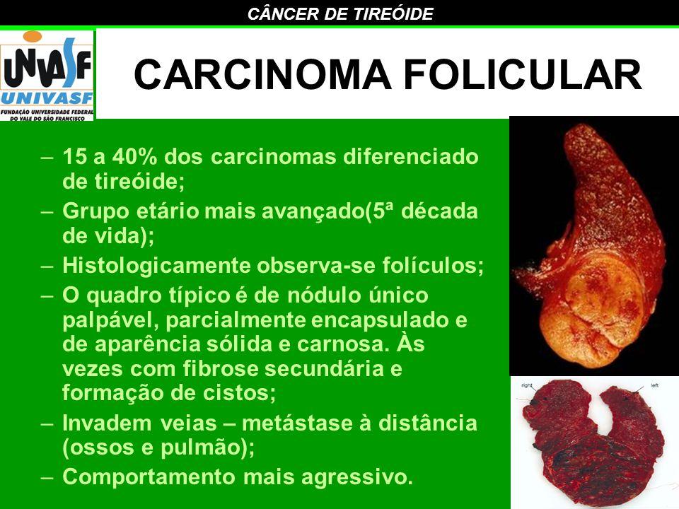 CARCINOMA FOLICULAR 15 a 40% dos carcinomas diferenciado de tireóide;