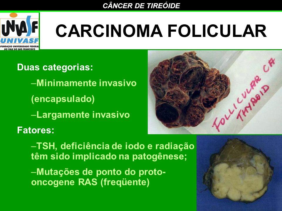 CARCINOMA FOLICULAR Duas categorias: Minimamente invasivo