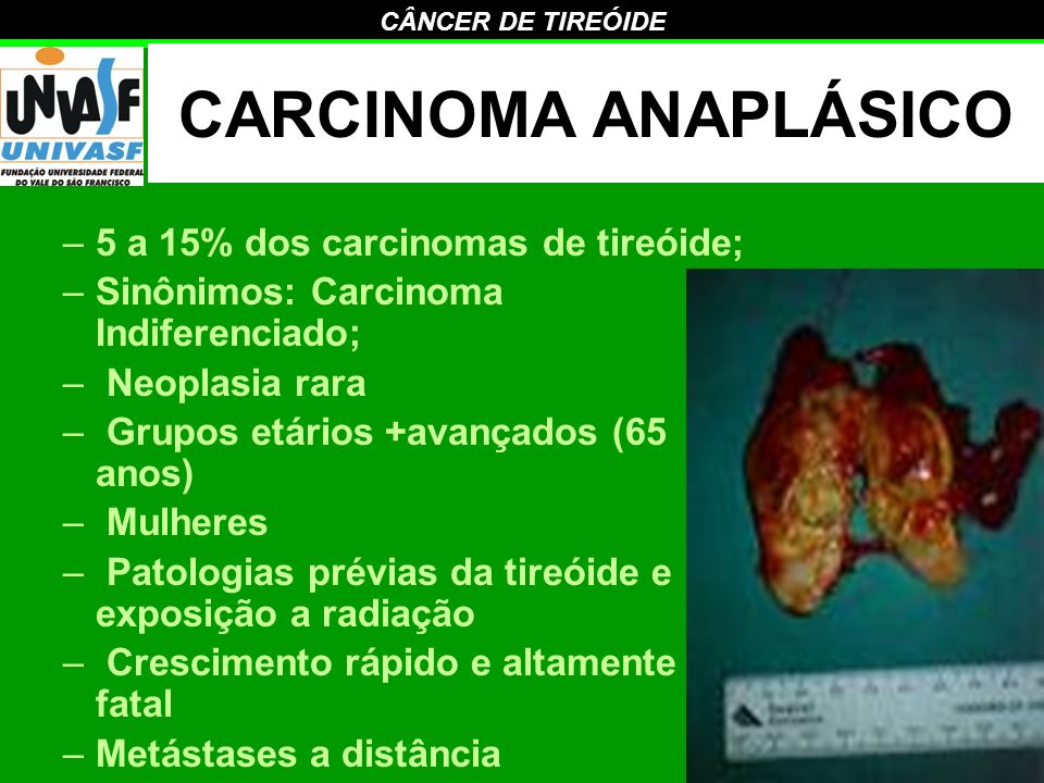 CARCINOMA ANAPLÁSICO 5 a 15% dos carcinomas de tireóide;