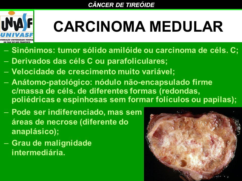 CARCINOMA MEDULAR Sinônimos: tumor sólido amilóide ou carcinoma de céls. C; Derivados das céls C ou parafoliculares;