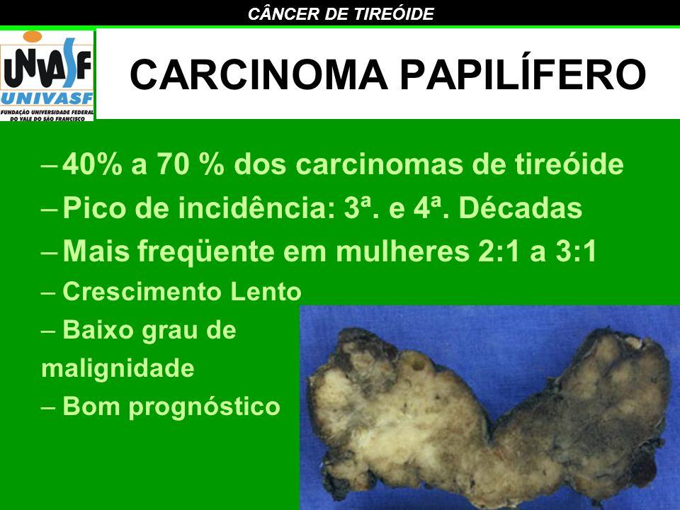 CARCINOMA PAPILÍFERO 40% a 70 % dos carcinomas de tireóide