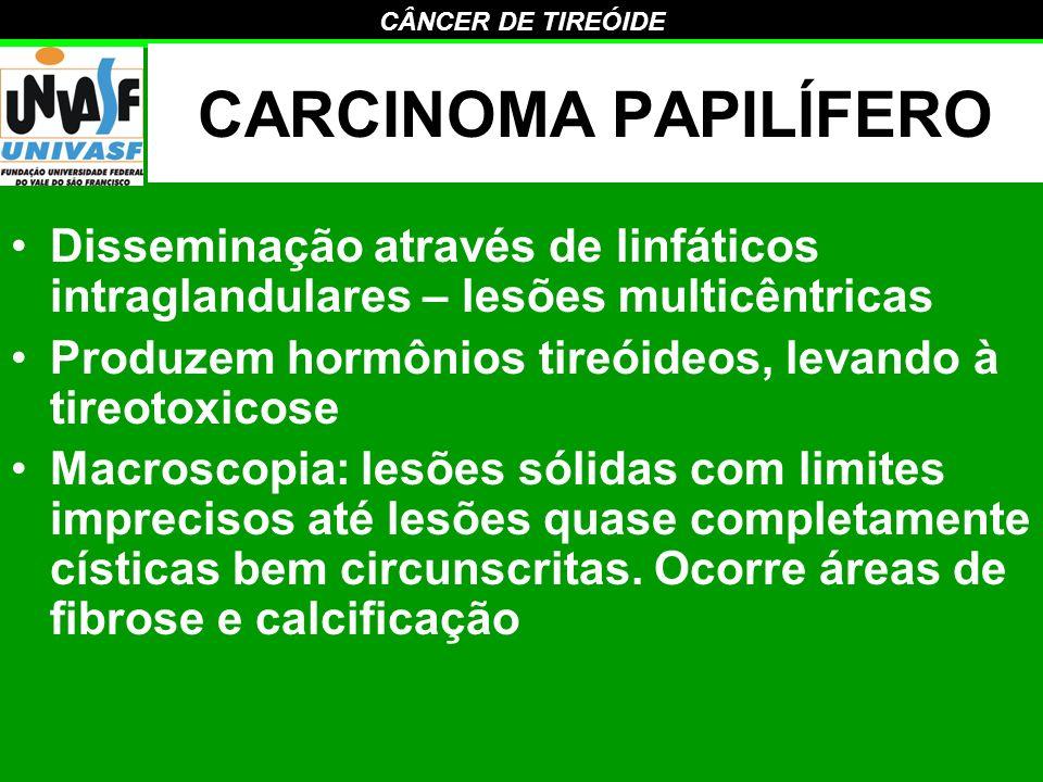 CARCINOMA PAPILÍFERO Disseminação através de linfáticos intraglandulares – lesões multicêntricas.
