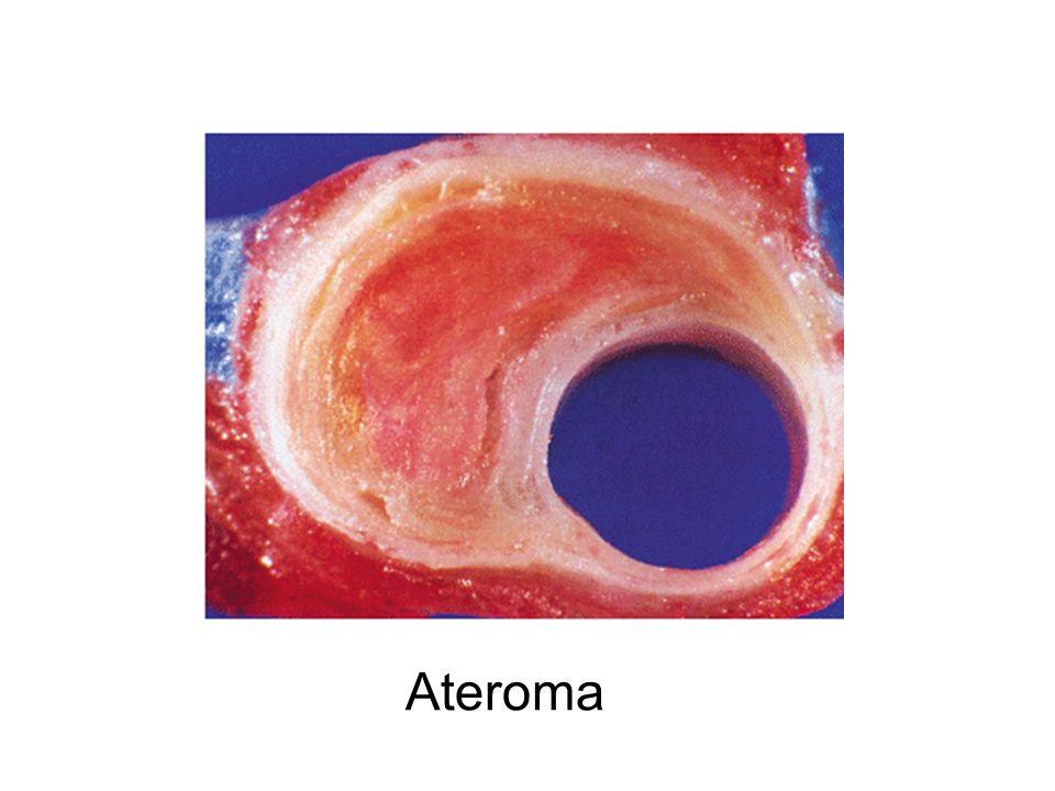 Ateroma
