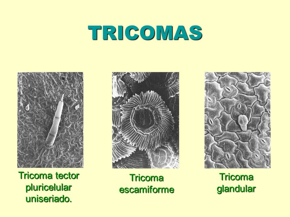 Tricoma tector pluricelular uniseriado.