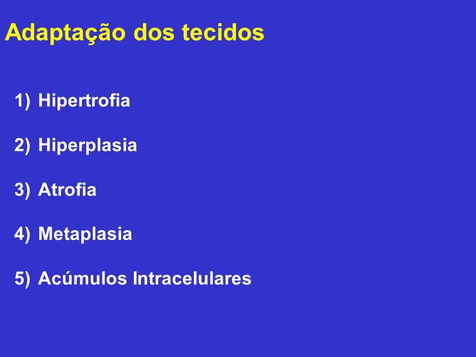 Adaptação dos tecidos Hipertrofia Hiperplasia Atrofia Metaplasia