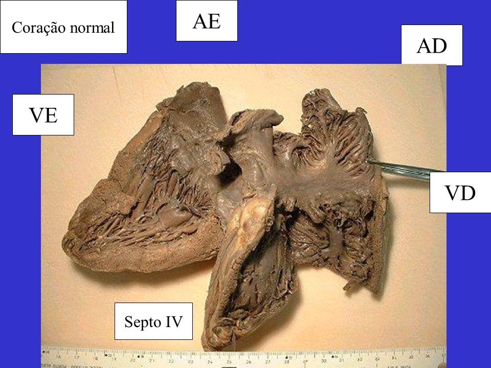 Coração normal AE AD VE VD Septo IV