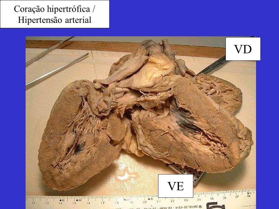 Coração hipertrófica /