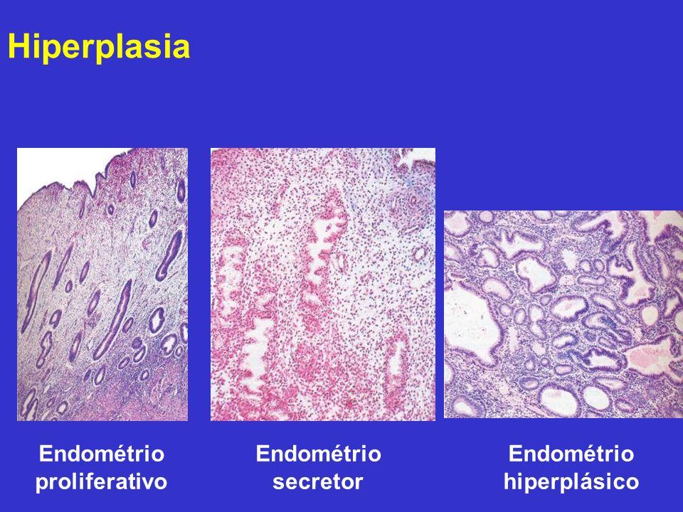 Hiperplasia Endométrio proliferativo Endométrio secretor Endométrio