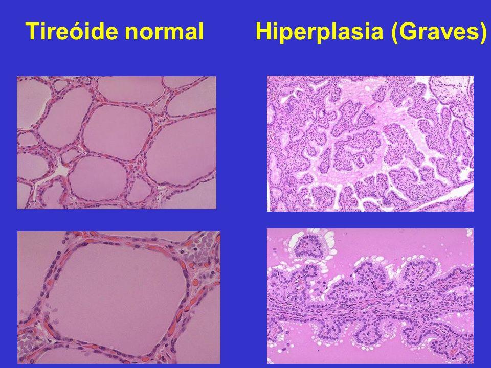 Tireóide normal Hiperplasia (Graves)