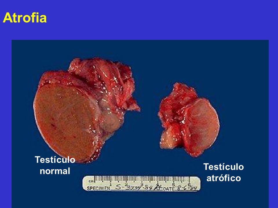 Atrofia Testículo normal Testículo atrófico