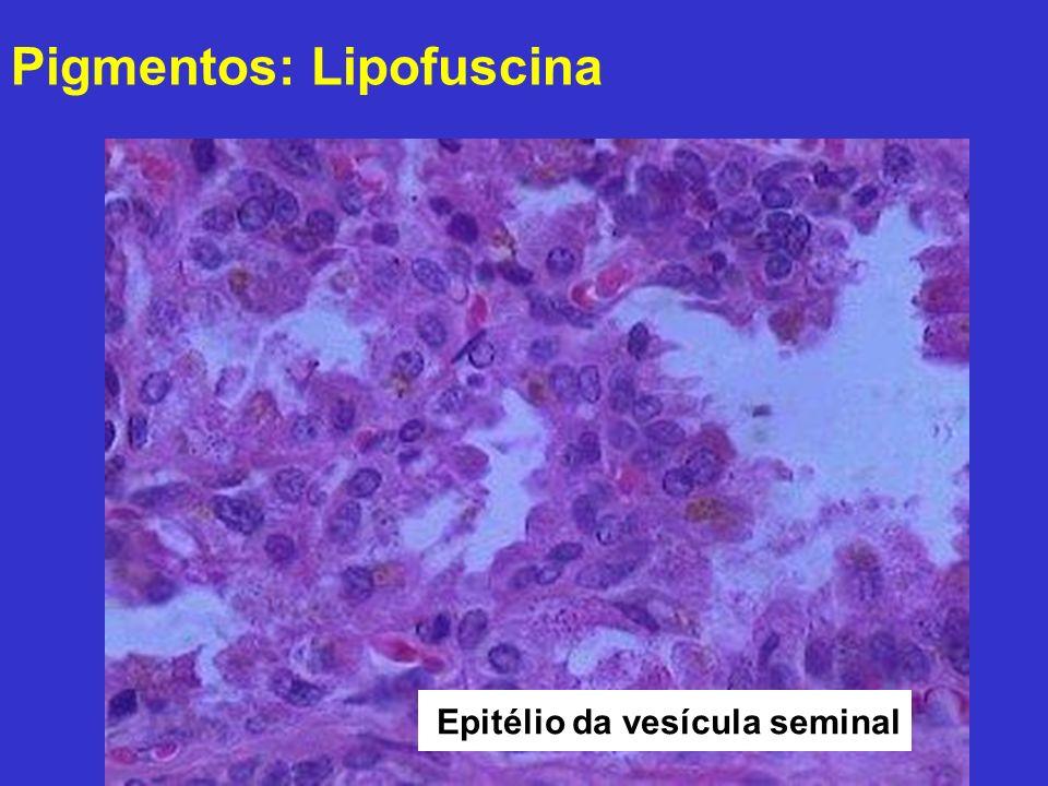 Pigmentos: Lipofuscina