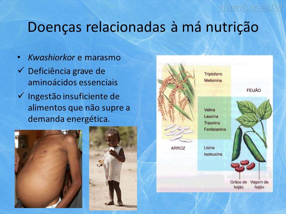 Doenças relacionadas à má nutrição