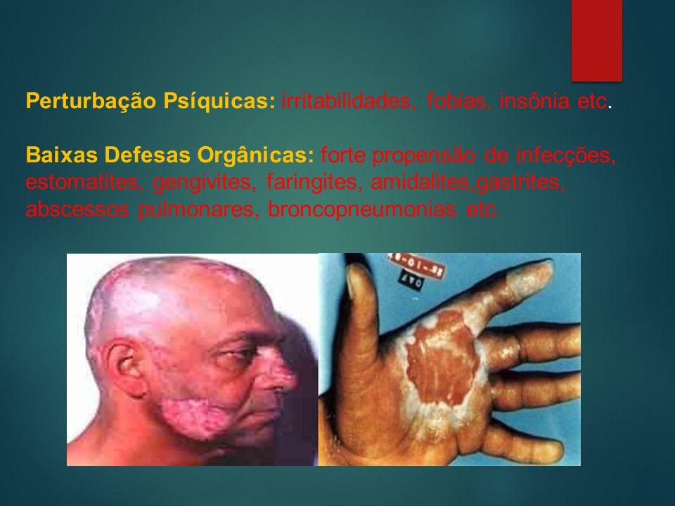 Perturbação Psíquicas: irritabilidades, fobias, insônia etc.