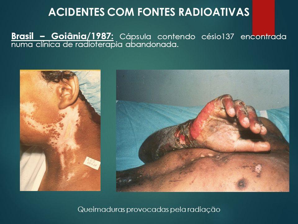 ACIDENTES COM FONTES RADIOATIVAS