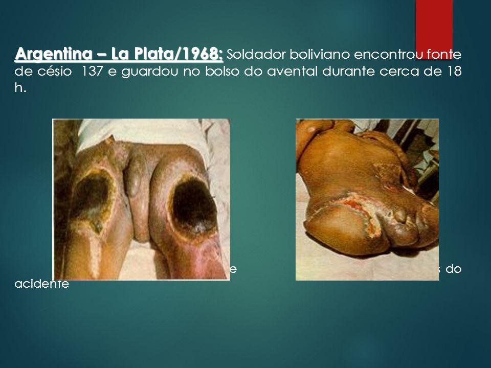 Argentina – La Plata/1968: Soldador boliviano encontrou fonte de césio 137 e guardou no bolso do avental durante cerca de 18 h.