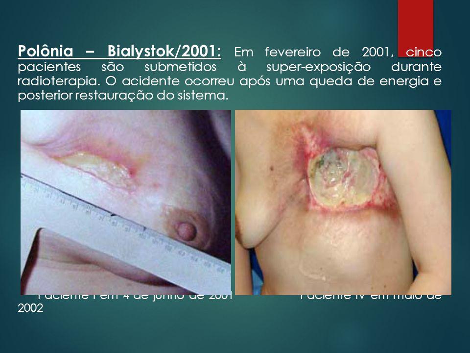 Polônia – Bialystok/2001: Em fevereiro de 2001, cinco pacientes são submetidos à super-exposição durante radioterapia. O acidente ocorreu após uma queda de energia e posterior restauração do sistema.