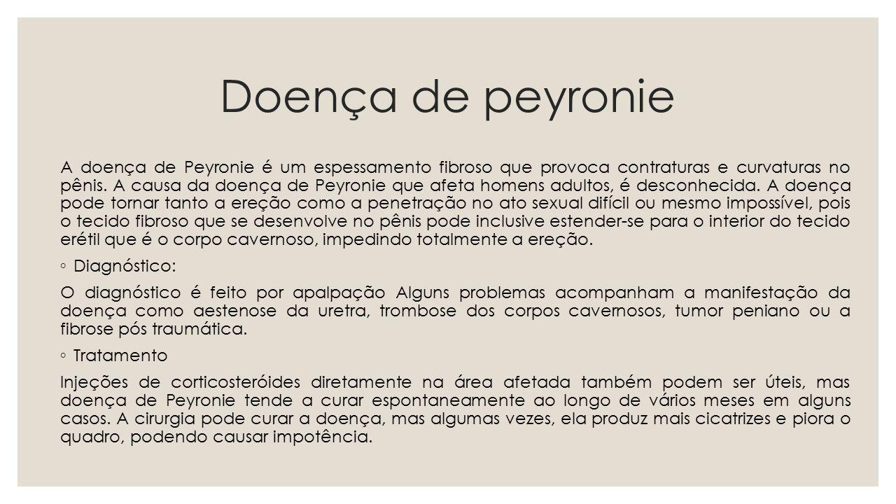 Doença de peyronie