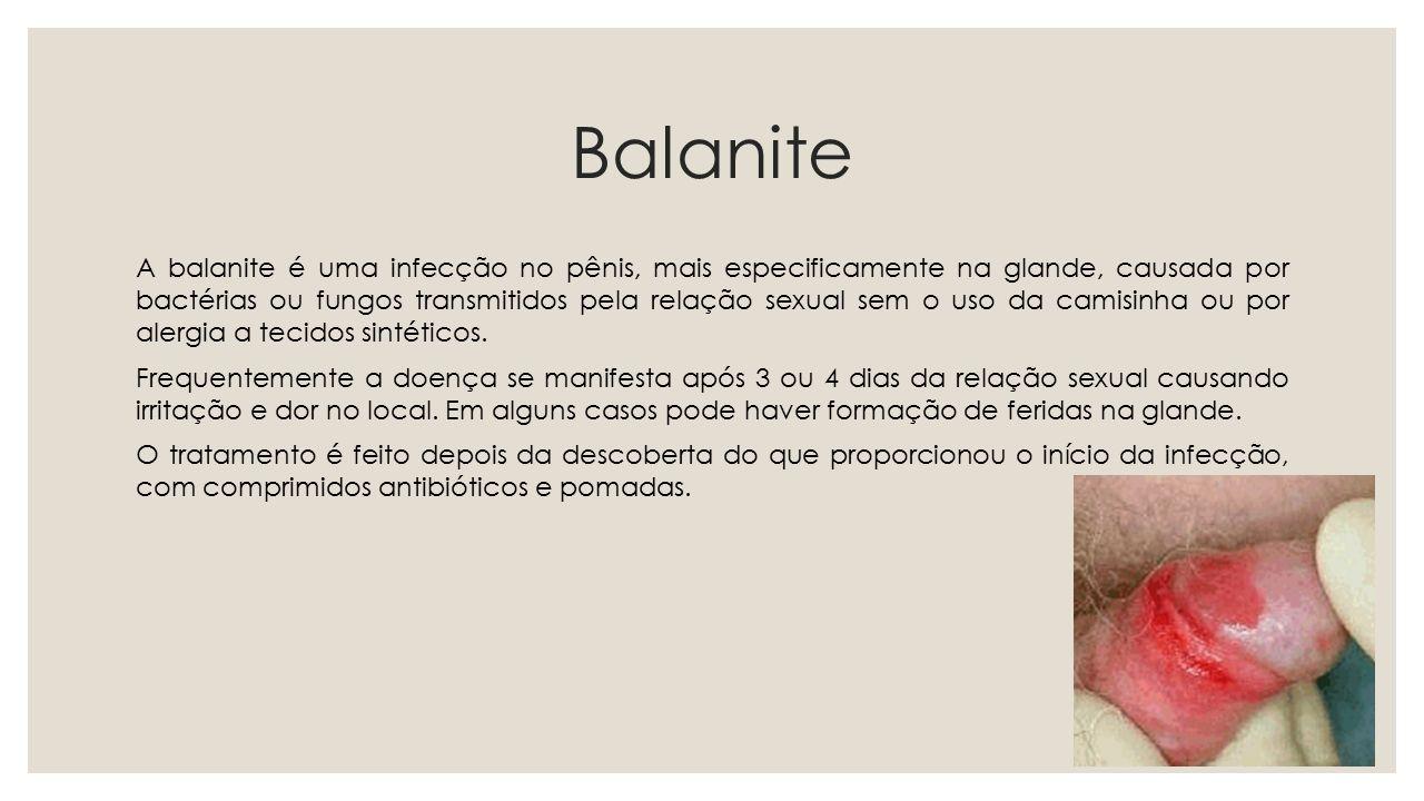 Balanite
