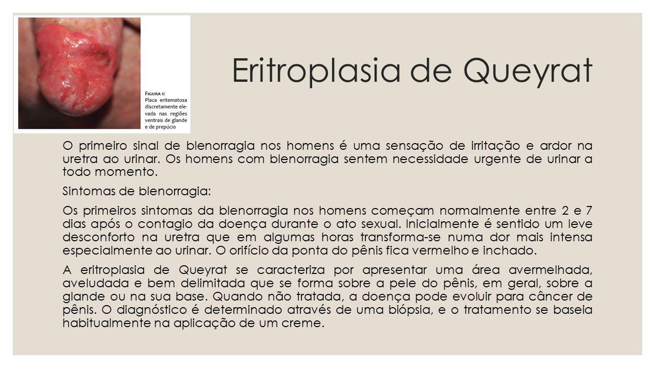 Eritroplasia de Queyrat