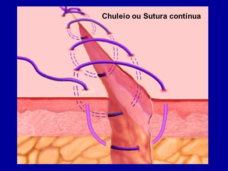 Chuleio ou Sutura contínua