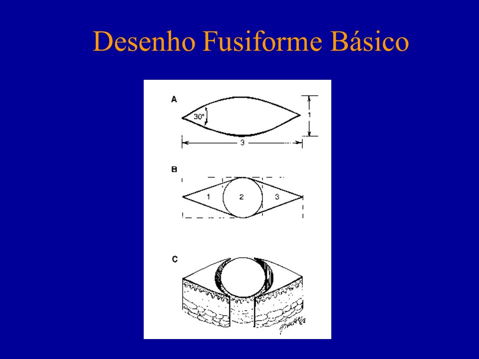 Desenho Fusiforme Básico