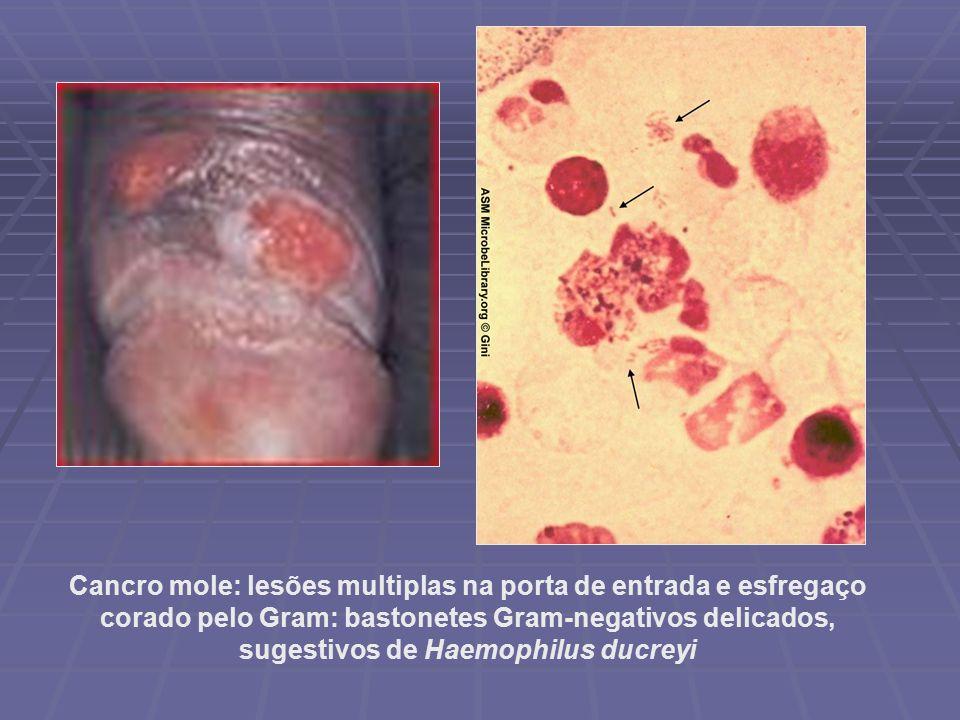 Cancro mole ou bubo fotos 17