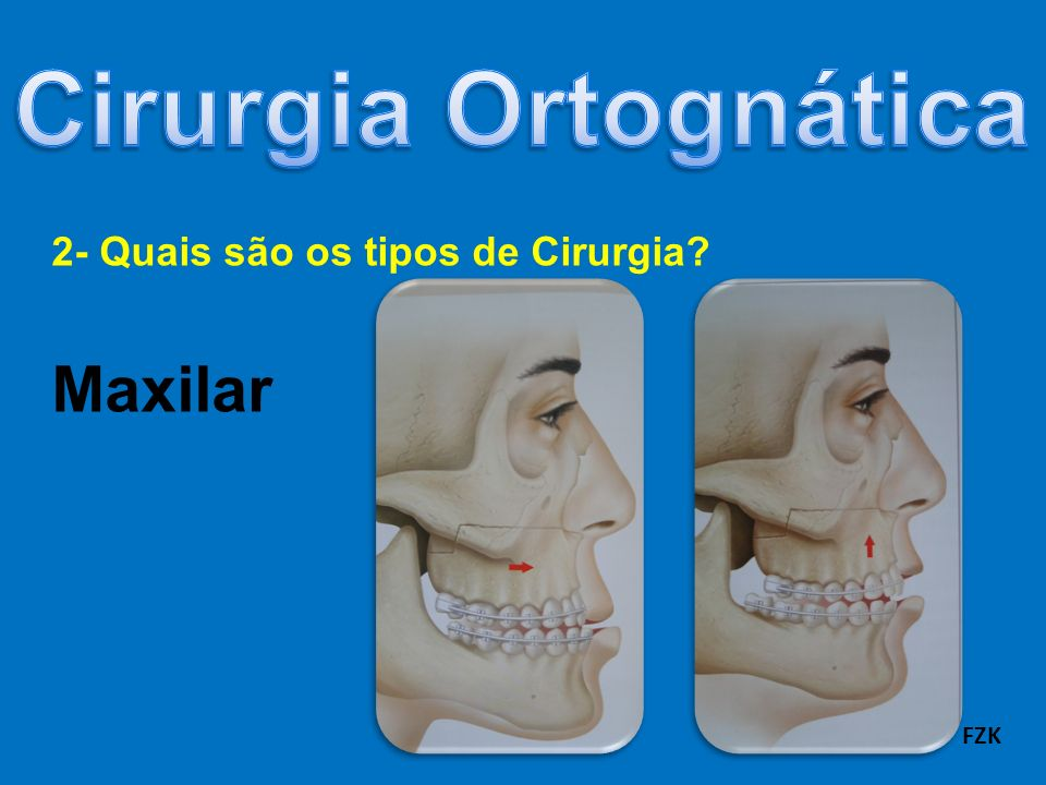 2- Quais são os tipos de Cirurgia Maxilar