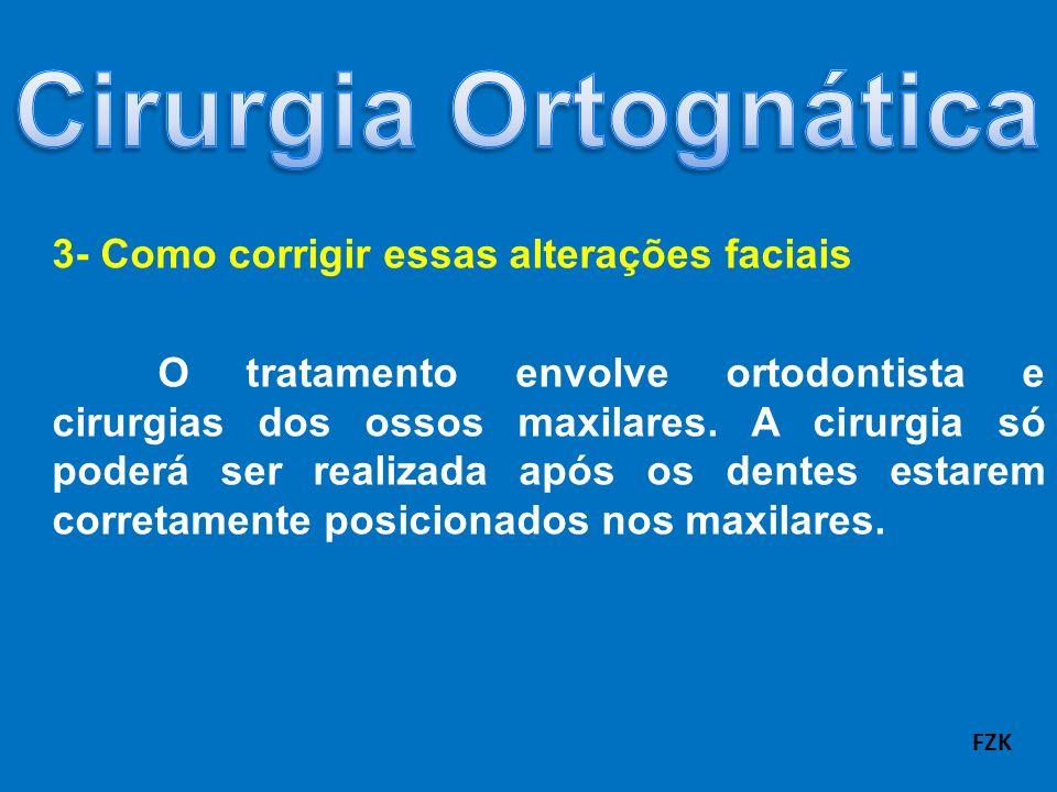 Cirurgia Ortognática 3- Como corrigir essas alterações faciais
