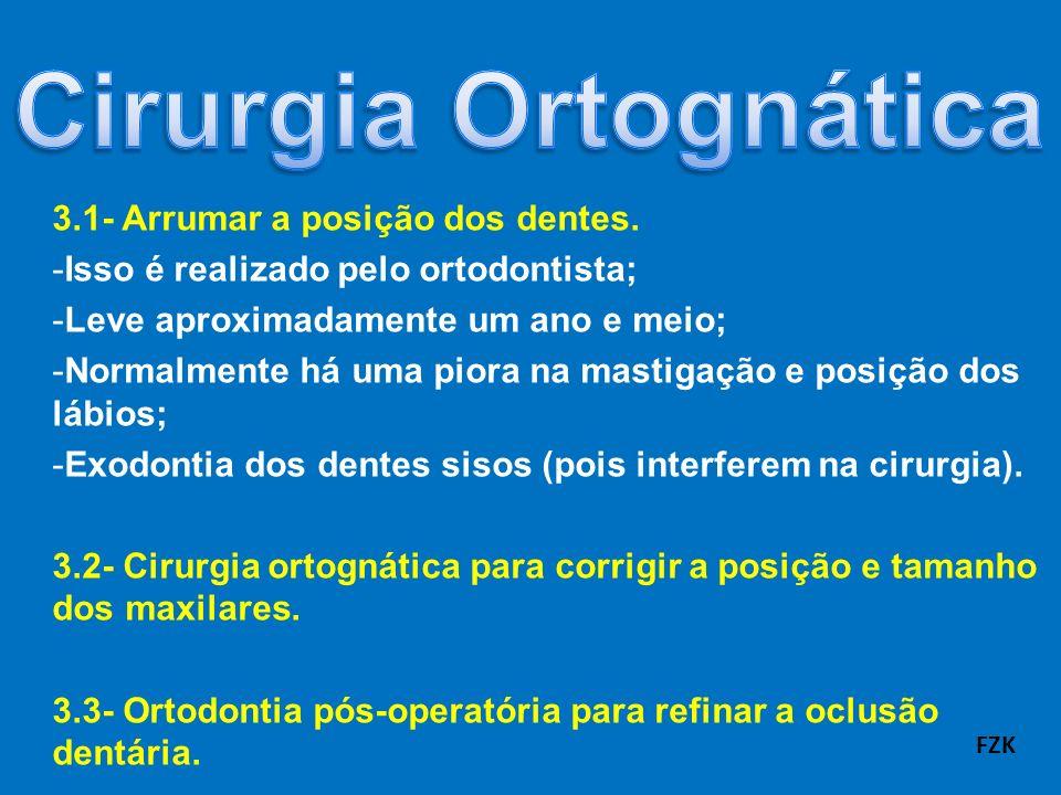 Cirurgia Ortognática 3.1- Arrumar a posição dos dentes.