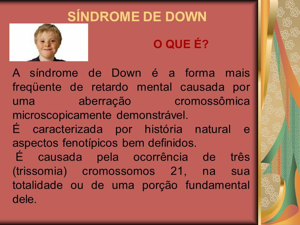 SÍNDROME DE DOWN O QUE É