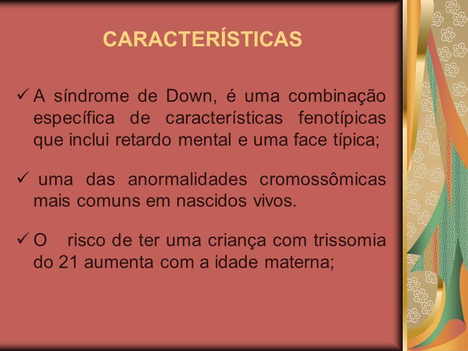 CARACTERÍSTICAS A síndrome de Down, é uma combinação específica de características fenotípicas que inclui retardo mental e uma face típica;