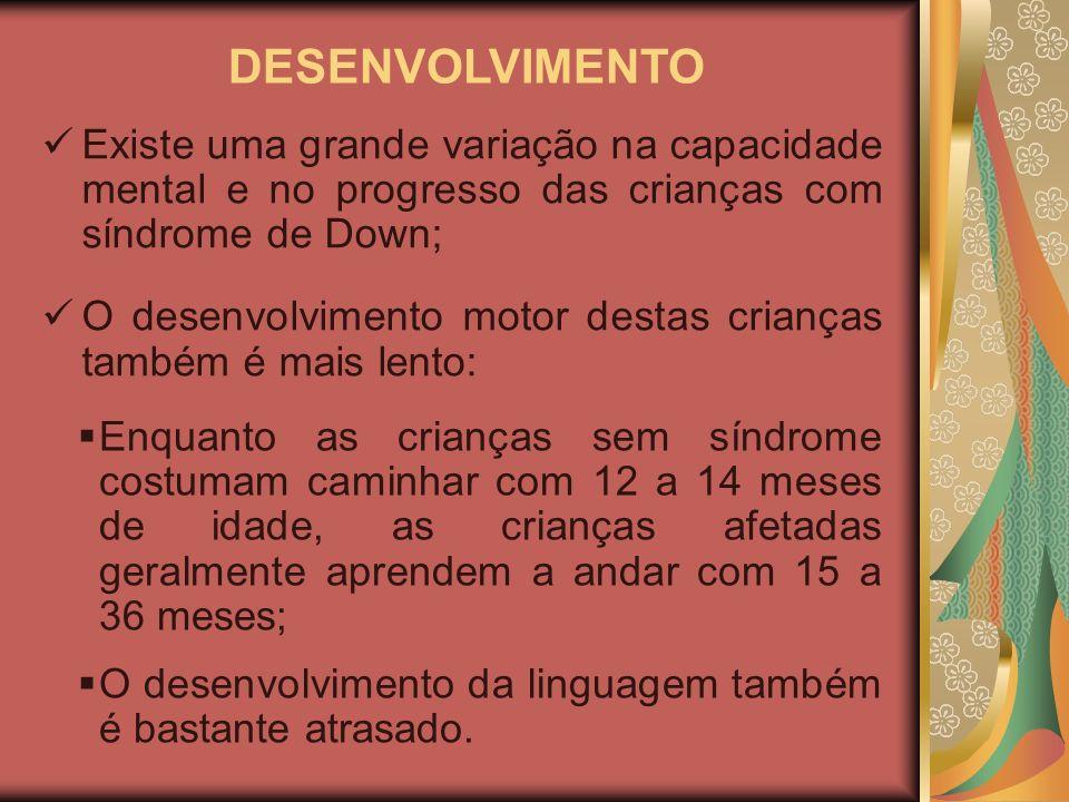 DESENVOLVIMENTO Existe uma grande variação na capacidade mental e no progresso das crianças com síndrome de Down;