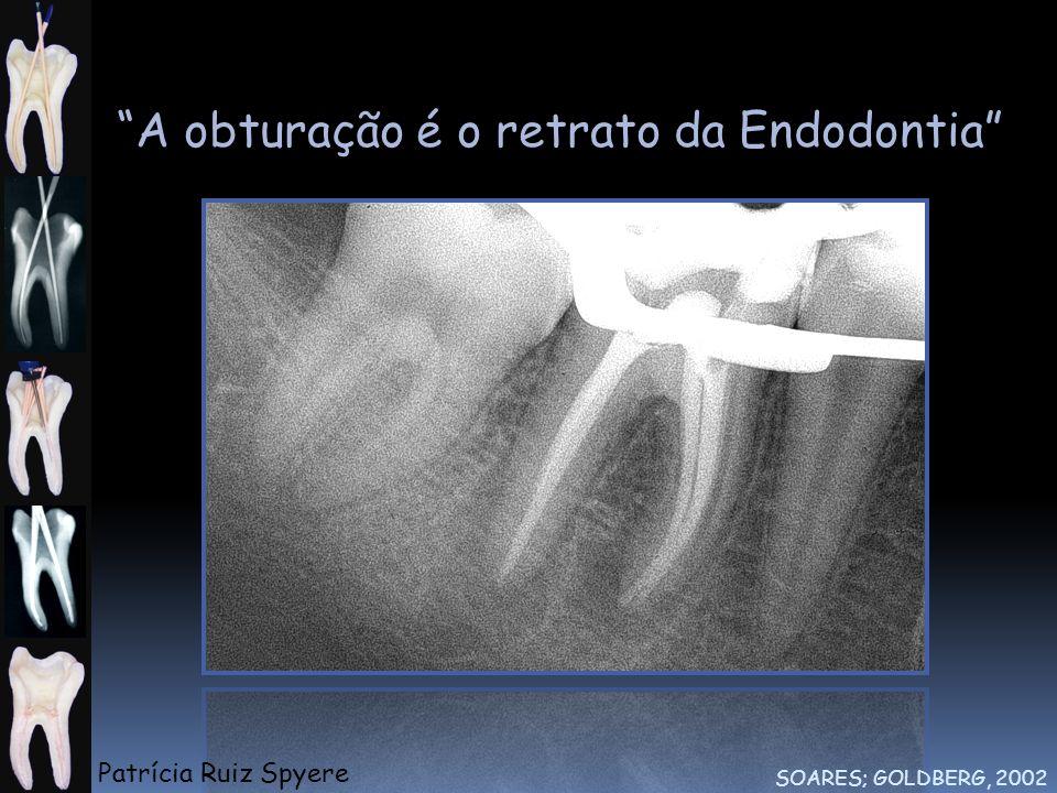 A obturação é o retrato da Endodontia