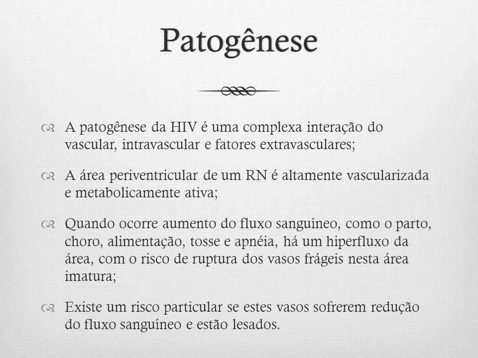 Patogênese A patogênese da HIV é uma complexa interação do vascular, intravascular e fatores extravasculares;