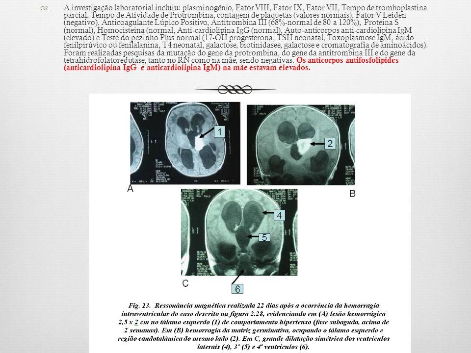 A investigação laboratorial incluiu: plasminogênio, Fator VIII, Fator IX, Fator VII, Tempo de tromboplastina parcial, Tempo de Atividade de Protrombina, contagem de plaquetas (valores normais), Fator V Leiden (negativo), Anticoagulante Lúpico Positivo, Antitrombina III (68%-normal de 80 a 120%), Proteína S (normal), Homocisteína (normal, Anti-cardiolipina IgG (normal), Auto-anticorpos anti-cardiolipina IgM (elevado) e Teste do pezinho Plus normal (17-OH progesterona, TSH neonatal, Toxoplasmose IgM, ácido fenilpirúvico ou fenilalanina, T4 neonatal, galactose, biotinidasee, galactose e cromatografia de aminoácidos).