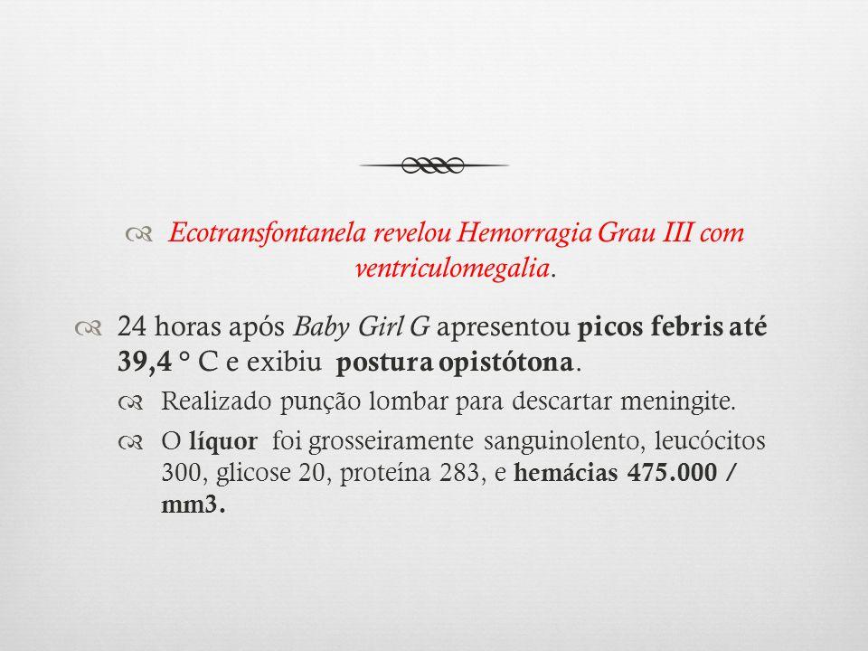 Ecotransfontanela revelou Hemorragia Grau III com ventriculomegalia.