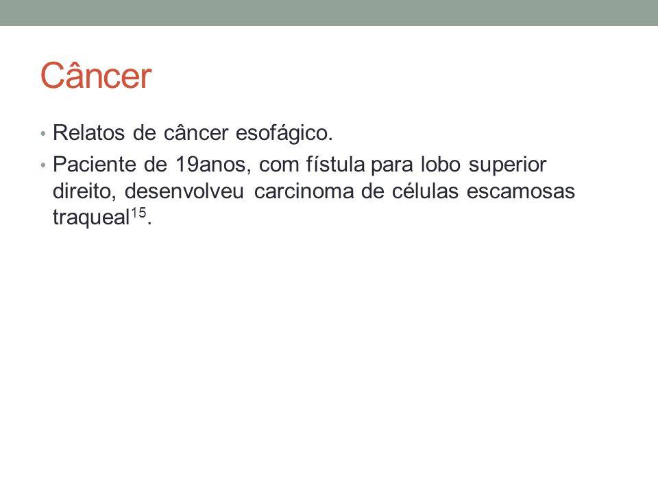 Câncer Relatos de câncer esofágico.