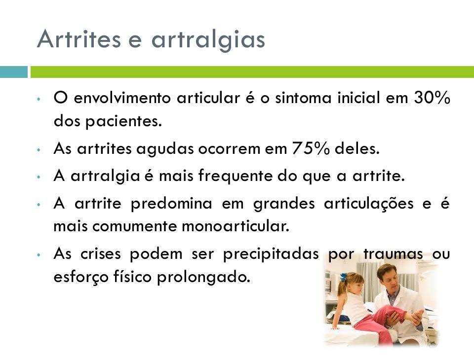 Artrites e artralgias O envolvimento articular é o sintoma inicial em 30% dos pacientes. As artrites agudas ocorrem em 75% deles.