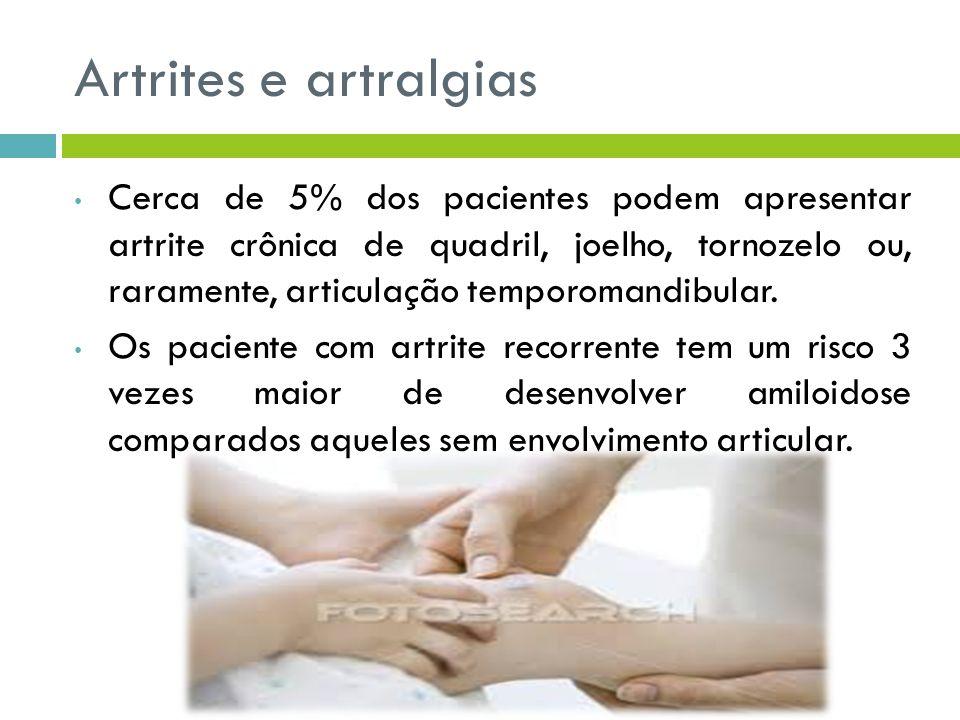 Artrites e artralgias