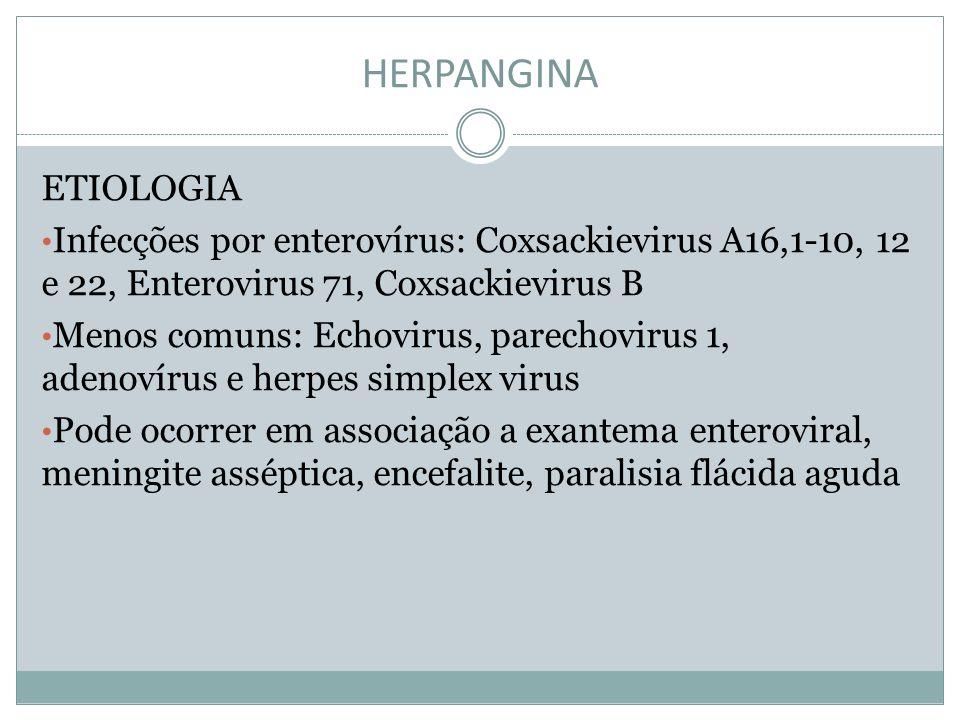 HERPANGINA ETIOLOGIA. Infecções por enterovírus: Coxsackievirus A16,1-10, 12 e 22, Enterovirus 71, Coxsackievirus B.