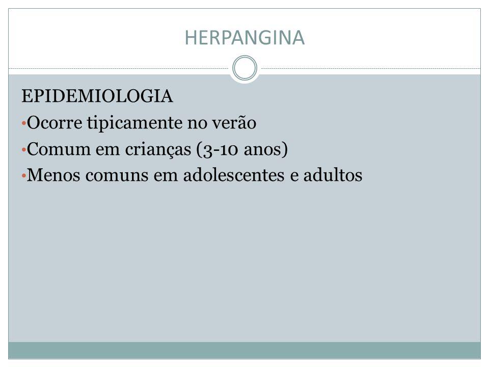 HERPANGINA EPIDEMIOLOGIA Ocorre tipicamente no verão