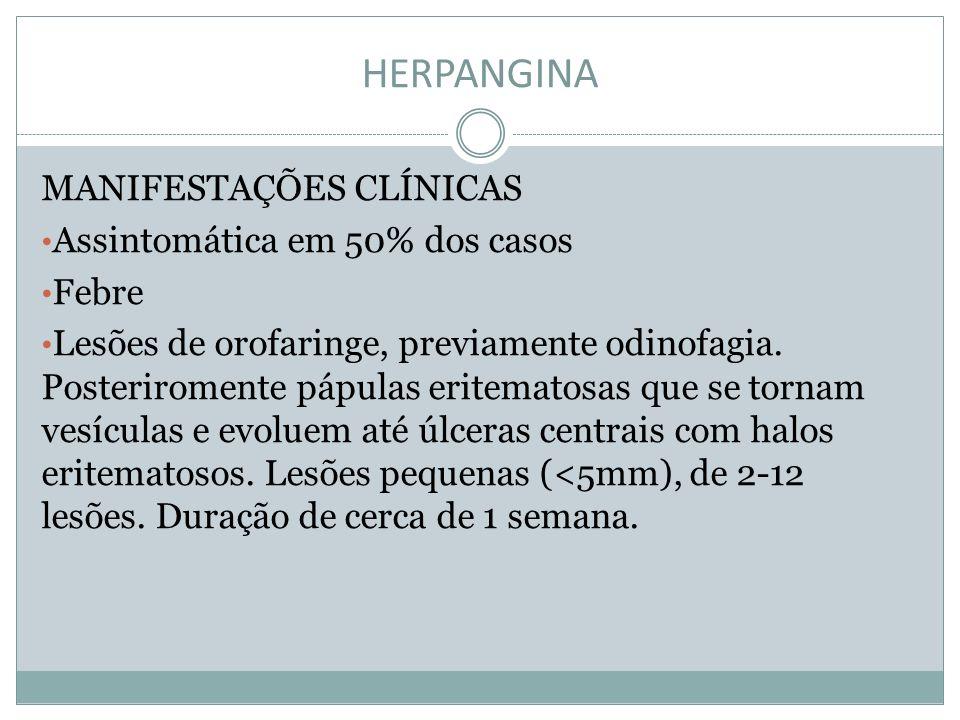 HERPANGINA MANIFESTAÇÕES CLÍNICAS Assintomática em 50% dos casos Febre