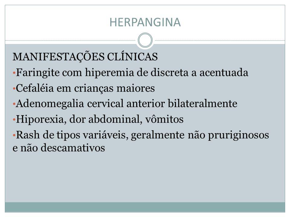 HERPANGINA MANIFESTAÇÕES CLÍNICAS