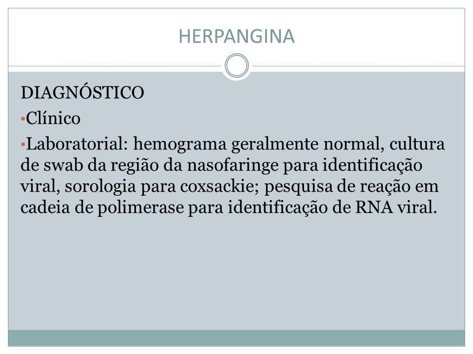 HERPANGINA DIAGNÓSTICO Clínico