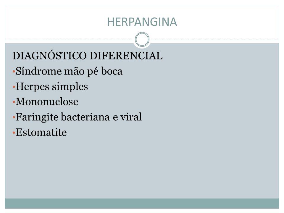 HERPANGINA DIAGNÓSTICO DIFERENCIAL Síndrome mão pé boca Herpes simples