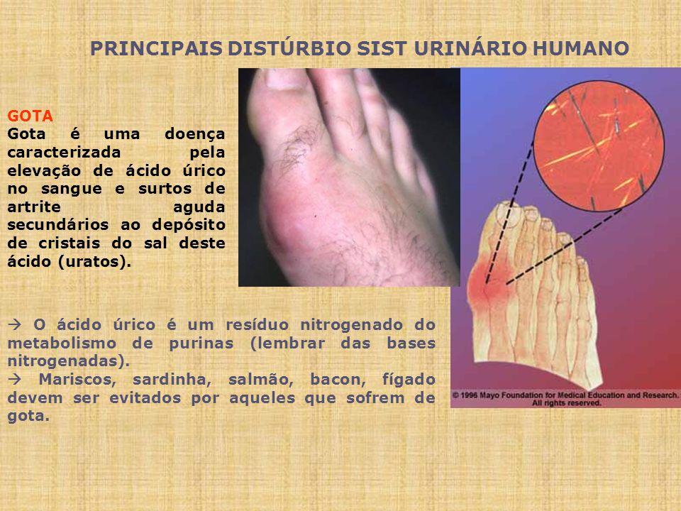 PRINCIPAIS DISTÚRBIO SIST URINÁRIO HUMANO