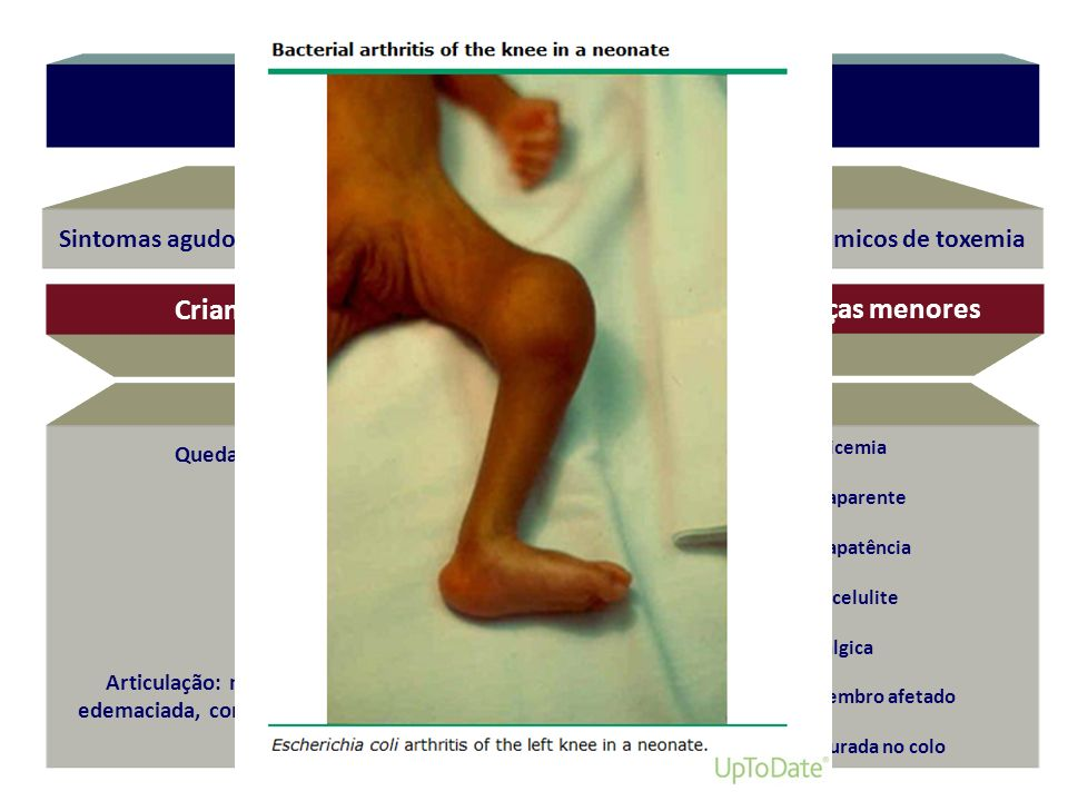 Sinais clínicos Crianças maiores Lactentes e crianças menores
