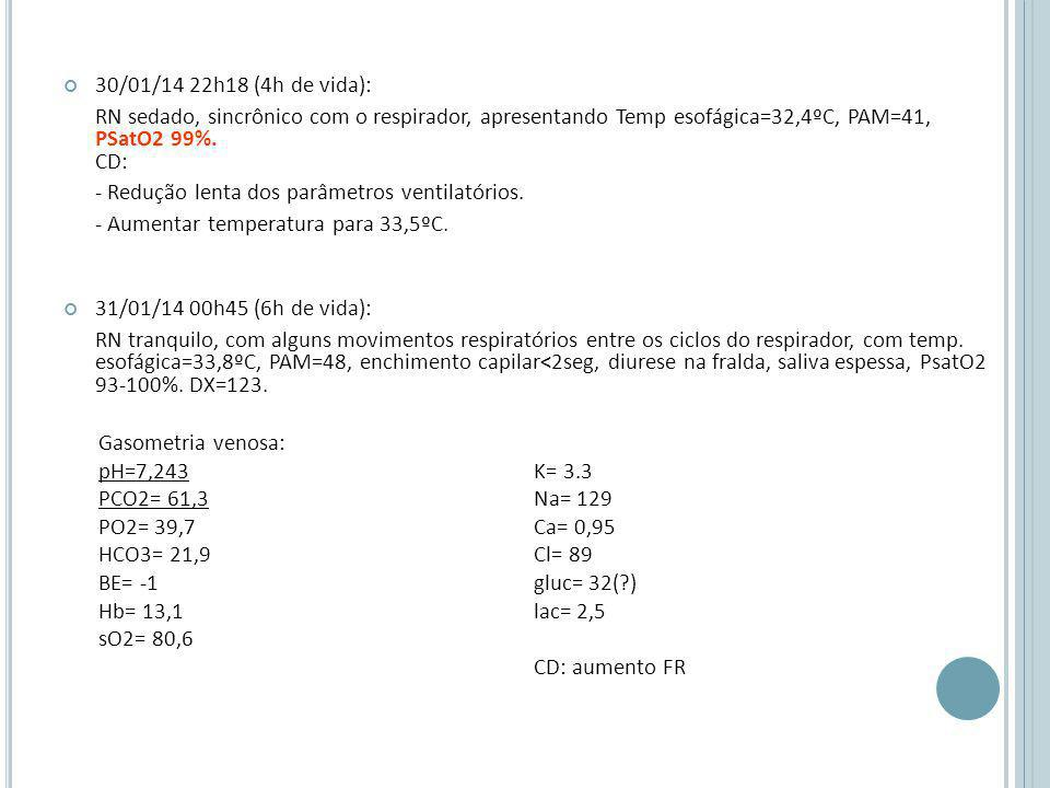 30/01/14 22h18 (4h de vida): RN sedado, sincrônico com o respirador, apresentando Temp esofágica=32,4ºC, PAM=41, PSatO2 99%. CD: