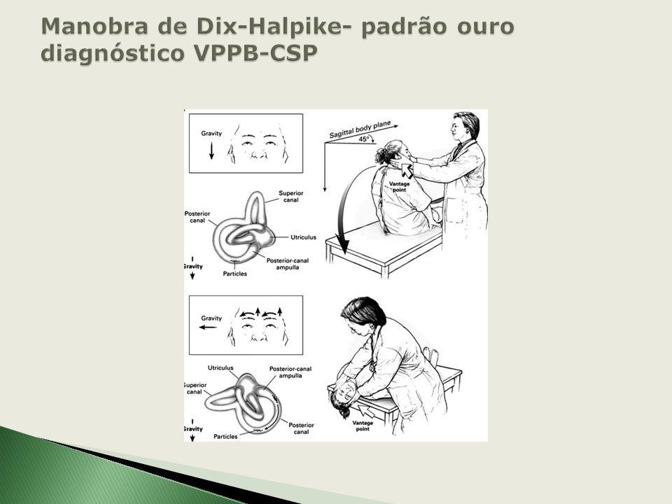 Manobra de Dix-Halpike- padrão ouro diagnóstico VPPB-CSP