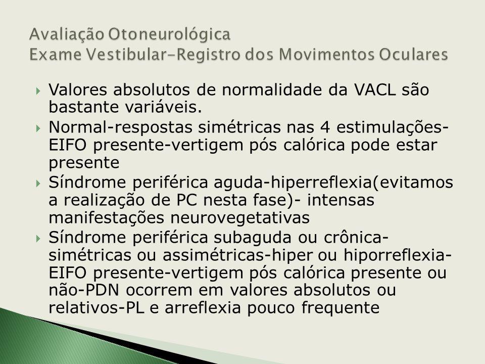 Avaliação Otoneurológica Exame Vestibular-Registro dos Movimentos Oculares